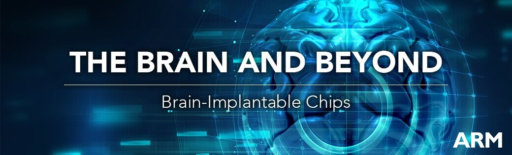 Brain Implantable in healthcare with bbci csne cortex m0